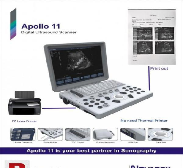 Sonotech apollo 11 ultrasound machine batter pc printer